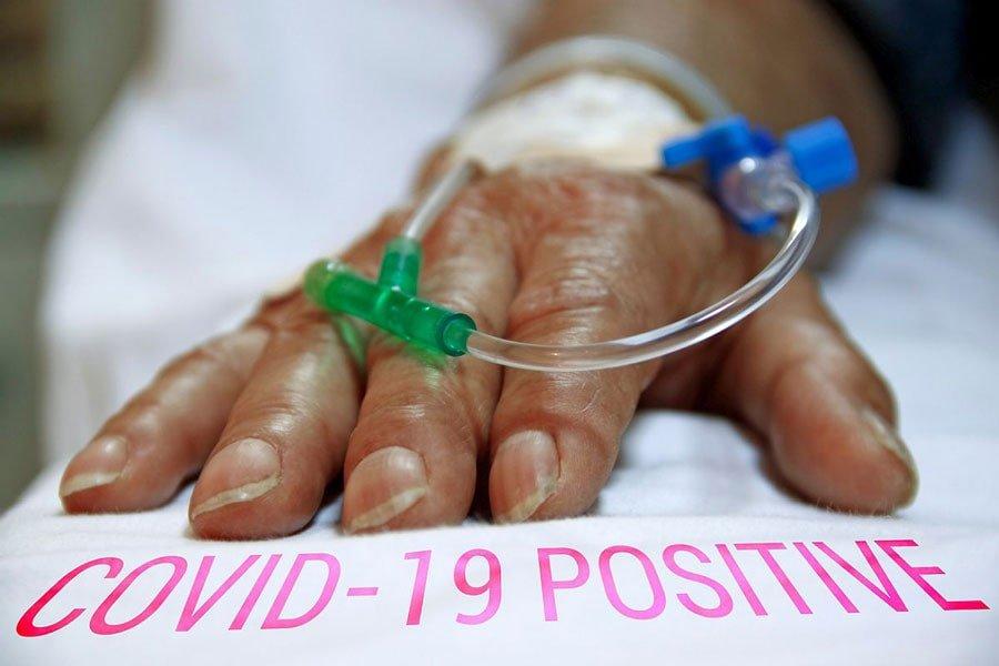 بیماری کویید 19