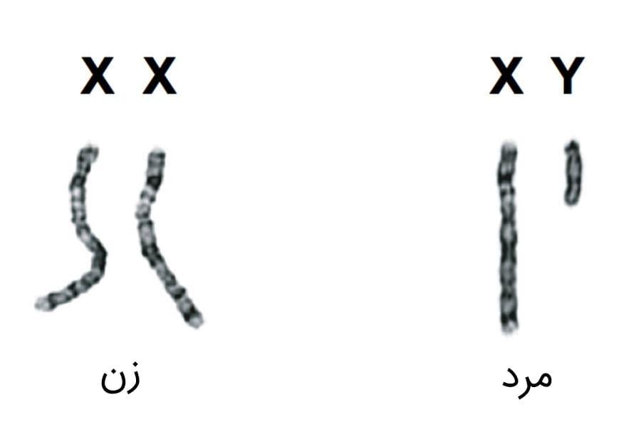 کرومزوم های زن و مرد